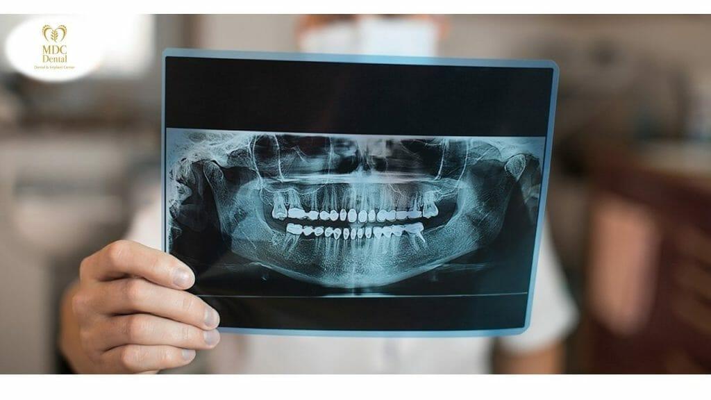 Miben segít a panoráma röntgen?